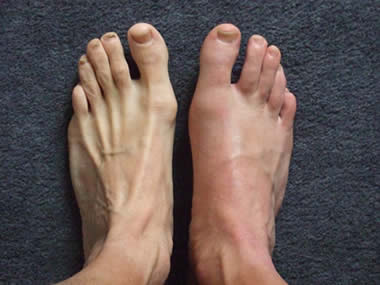 Gout toe of the foot