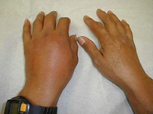 psoriasis ontsteking